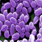 Anthrax Bacteria (Photo Credit: Janice Haney Carr)